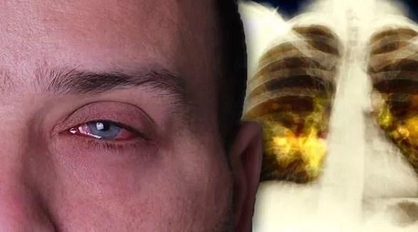 تدلي الجفنين قد يؤشر على سرطان الرئة