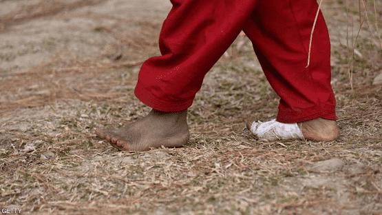 ماذا فعل كورونا بأقدامنا؟
