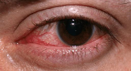 علاج جديد لفقد الإبصار بسبب أمراض القرنية