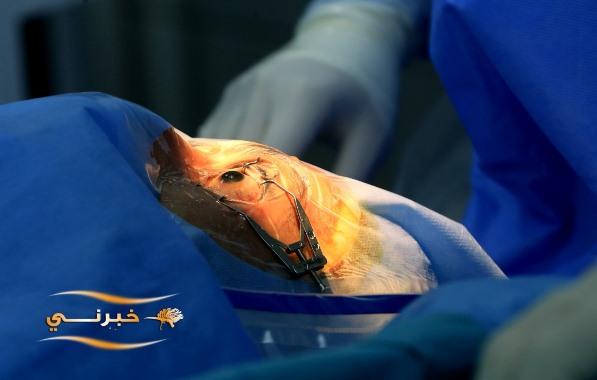 تقنيّة جديدة لعلاج ضغط العين في الأردن