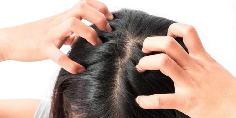 ما هي طرق التخلص من قشرة الشعر؟