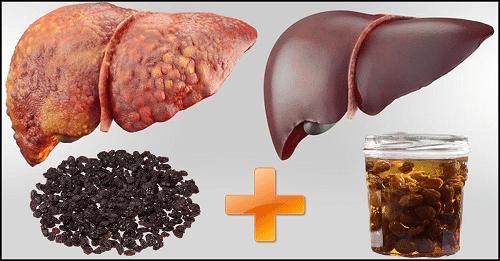 اطعمة تحسن امراض الكبد