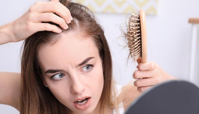 5 فيتامينات ومعادن لعلاج تساقط الشعر