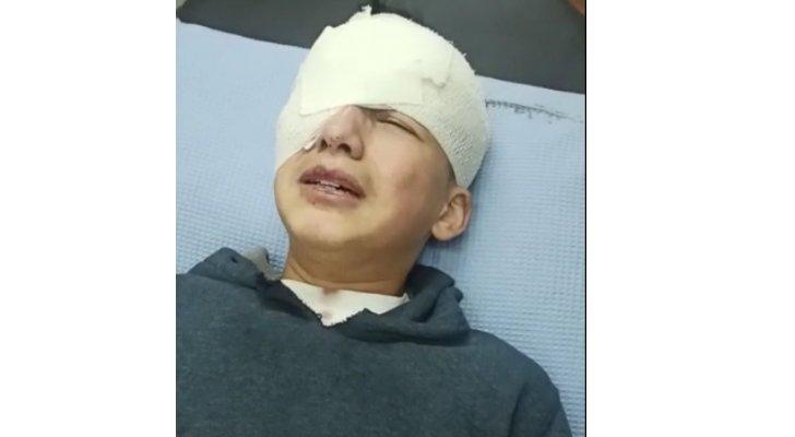طفل يفقد عينه برصاص الاحتلال
