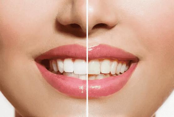 3 حيل مذهلة.. لتبدو أسنانك أكثر بياضاً
