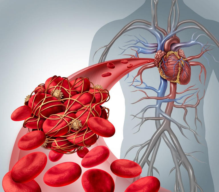 علامات شبيهة للشد العضلي تنذر بالجلطة الدموية