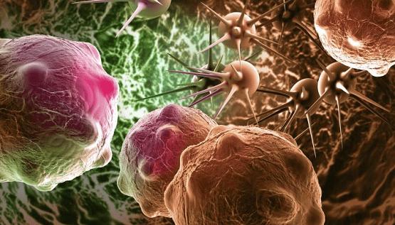 علاج سرطان الدماغ.. تقنية جديدة تبشر بنتائج واعدة