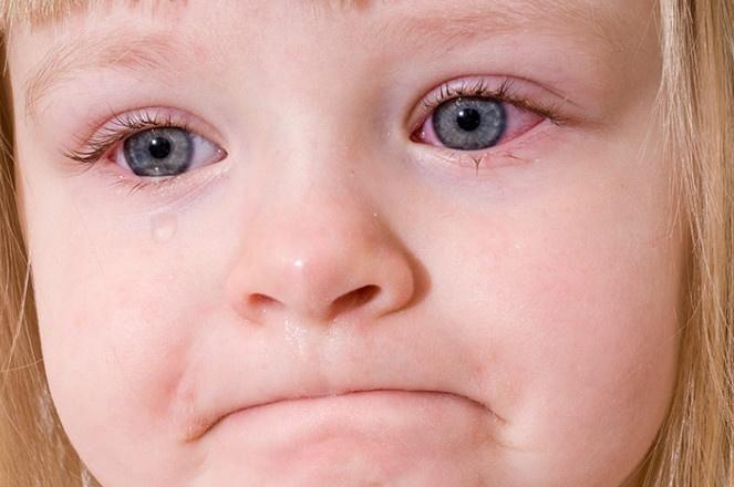 احمرار العيون عند الأطفال بين الأسباب والعلاج
