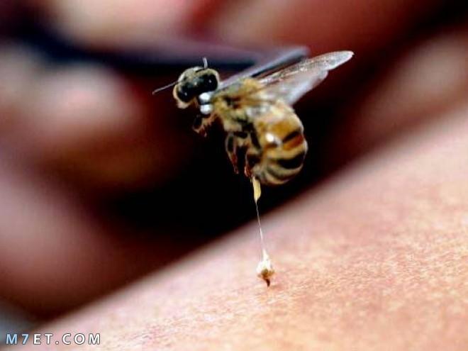 هل لسعة النحل في العين أمر خطير وما هو العلاج؟