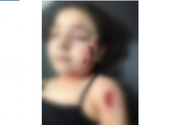 طفلة مصرية تتعرض لهجوم شرس من كلب ضال - فيديو