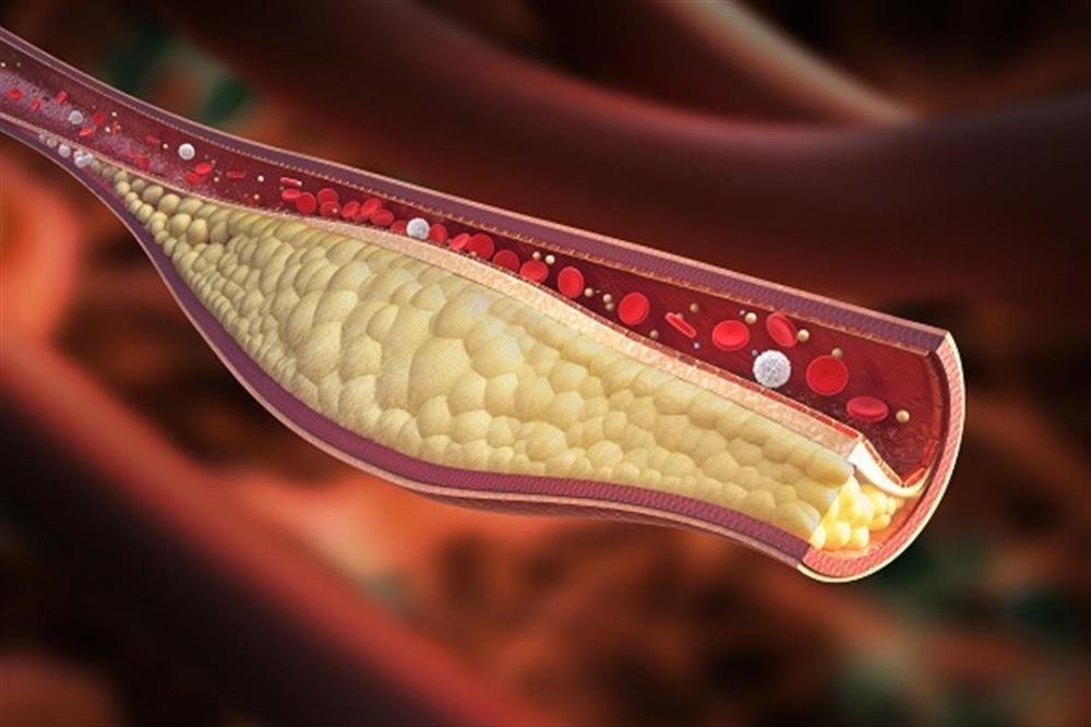 علامتان تشيران إلى ارتفاع مستوى الكوليسترول بالدم