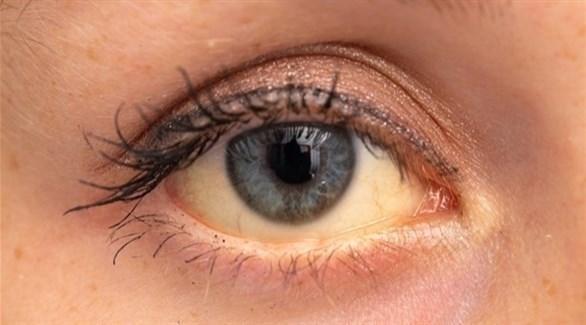 ما أسباب اصفرار العين؟